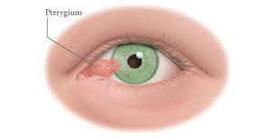 illustration_pterygium